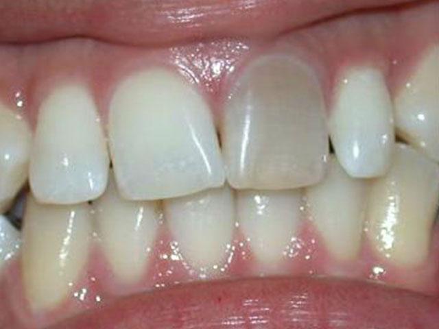 Oscurecimiento-por-endodoncia-antes
