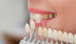 Carillas dentales, todo lo que necesitas saber
