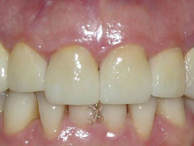 carillas-zirconia-despues