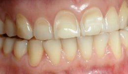 Erosión dental y lo que lo ocasiona