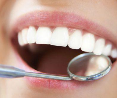 ¿Qué es una limpieza dental ultrasónica?