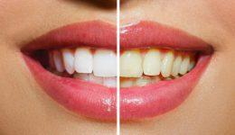 Mitos del blanqueamiento de dientes