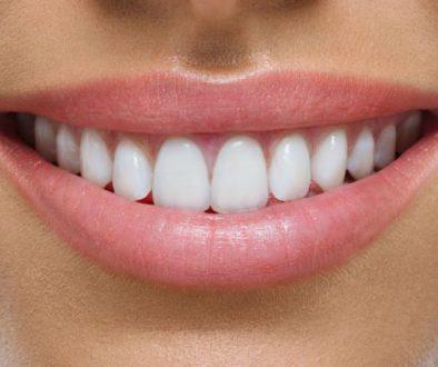 Beneficios de las carillas dentales