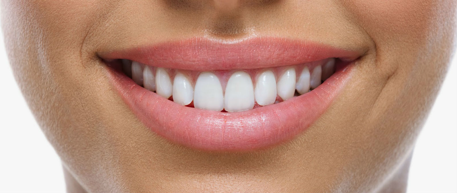 Beneficios de las carillas dentales