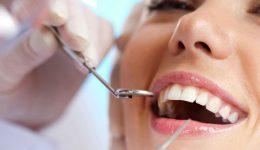 descuento en carillas dentales todo marzo