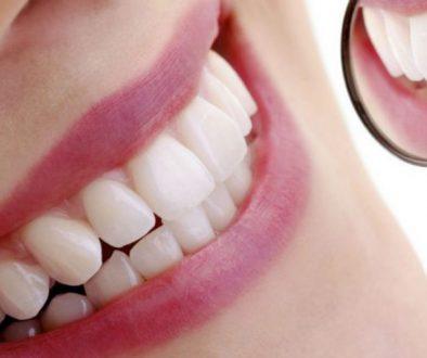 Ventajas de las resinas dentales