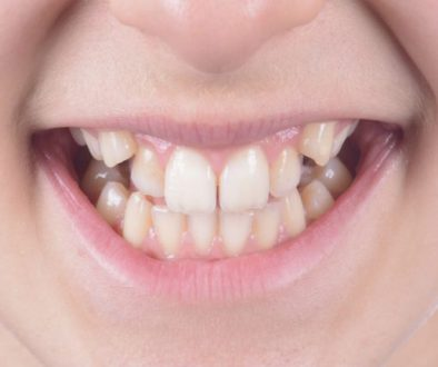 Problemas de tener los dientes chuecos