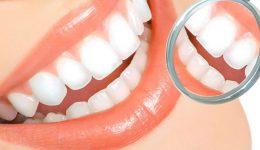 Limpieza dental ultrasónica aprecio especial