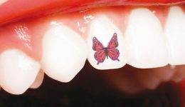 Tatuaje dental