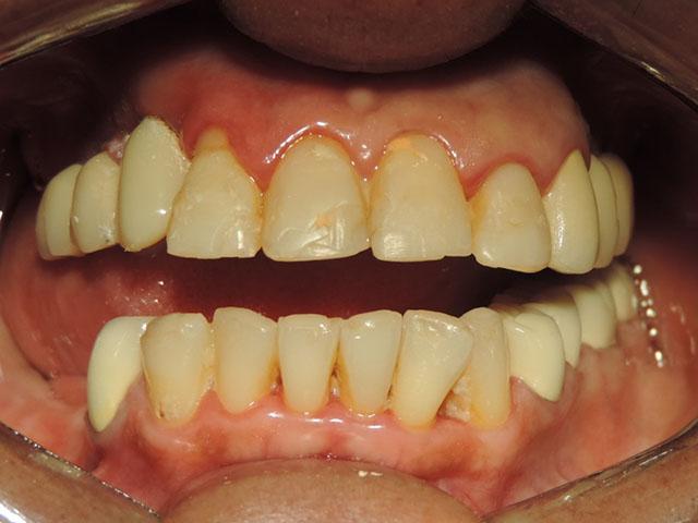 Cambio-de-carillas-de-resina-por-carillas-de-zirconia-ANTES-1