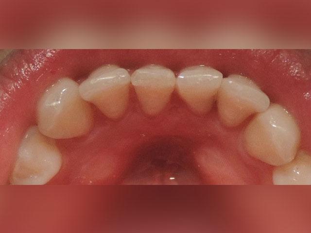 Correccion-de-posicion-dentaria-despues