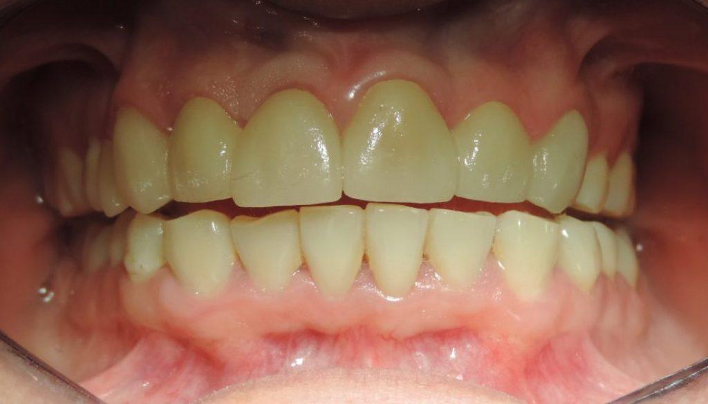Golpe en dientes superiores