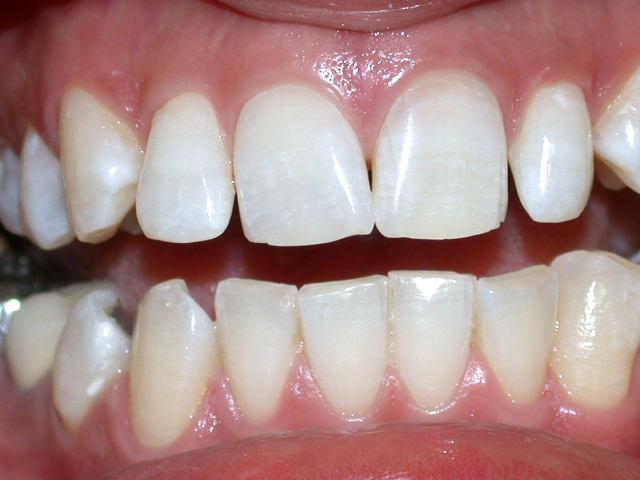Oscurecimiento-por-endodoncia-despues