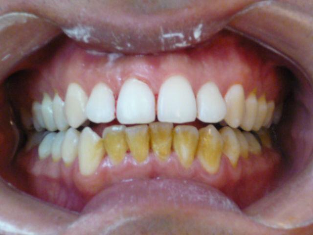 Aeropulido dental ANTES