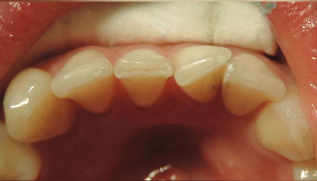 correccion-de-posicion-dentaria-antes