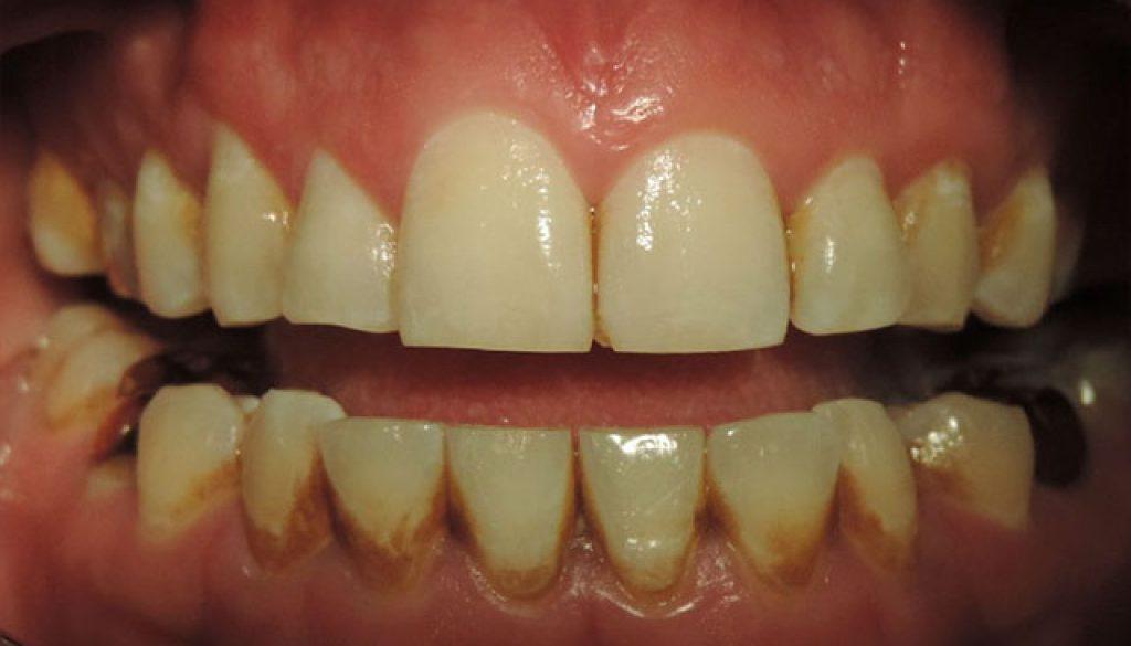 limpieza-dental-ultrasonica-antes