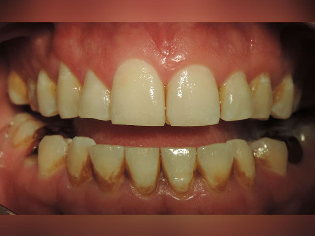 limpieza-dental-ultrasonica-antes