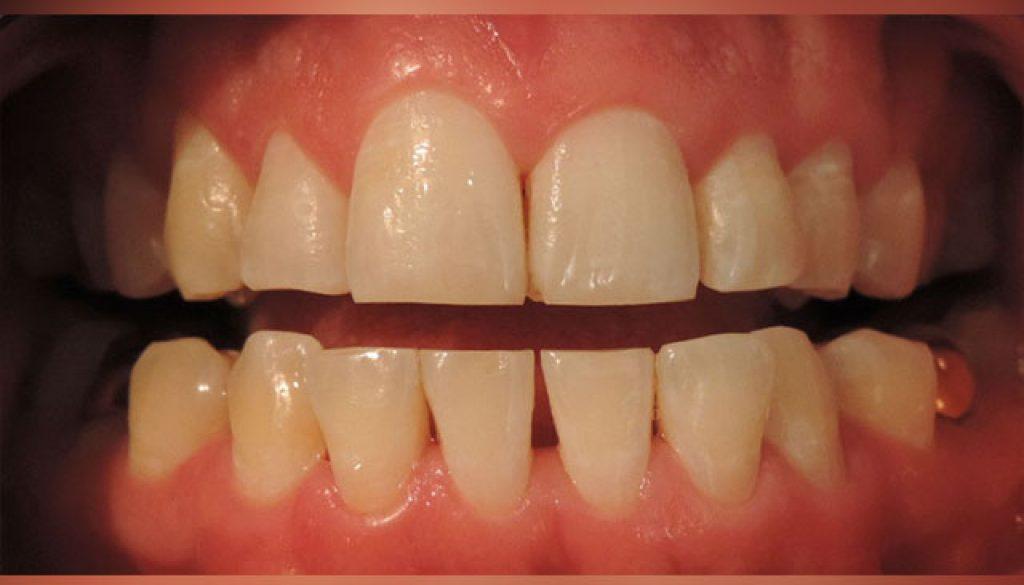limpieza-dental-ultrasonica-despues