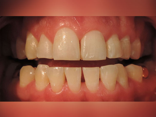 limpieza-dental-ultrasonica-despues