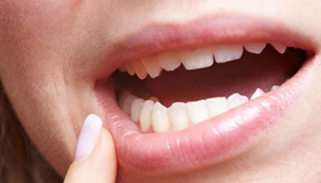 ¿Por qué se mueven los dientes?