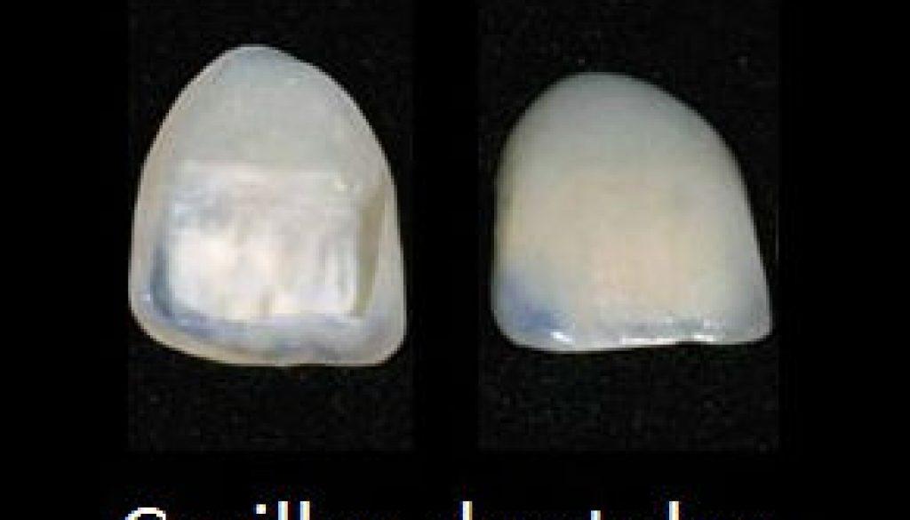 carillas-dentales-odontotecks