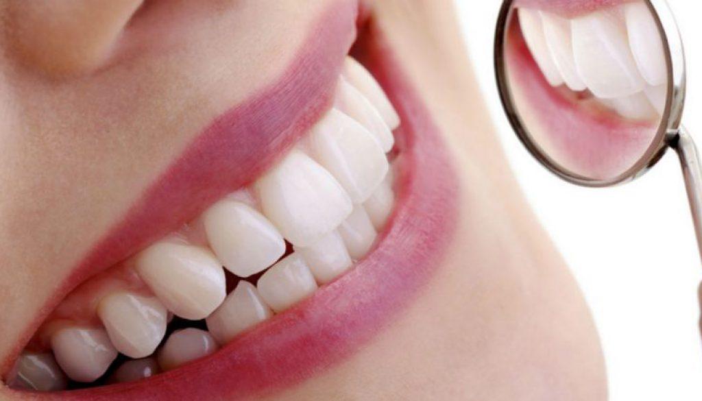 diferencias entre las carillas y coronas dentales