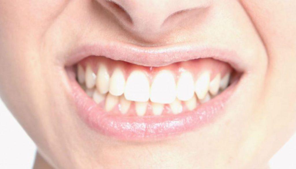Rechinas los dientes