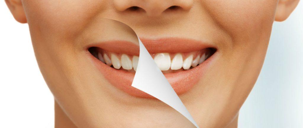promoción en blanqueamiento de dientes julio