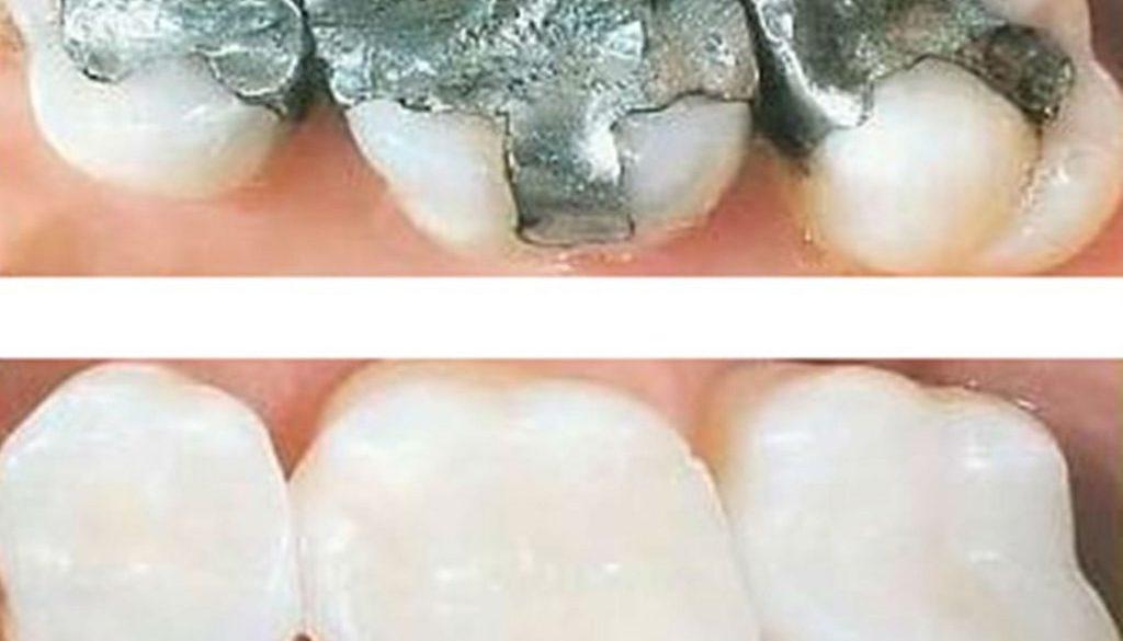 Cambio de amalgamas por resinas dentales