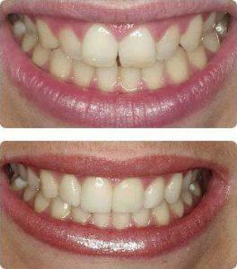 Resinas en los dientes frontales