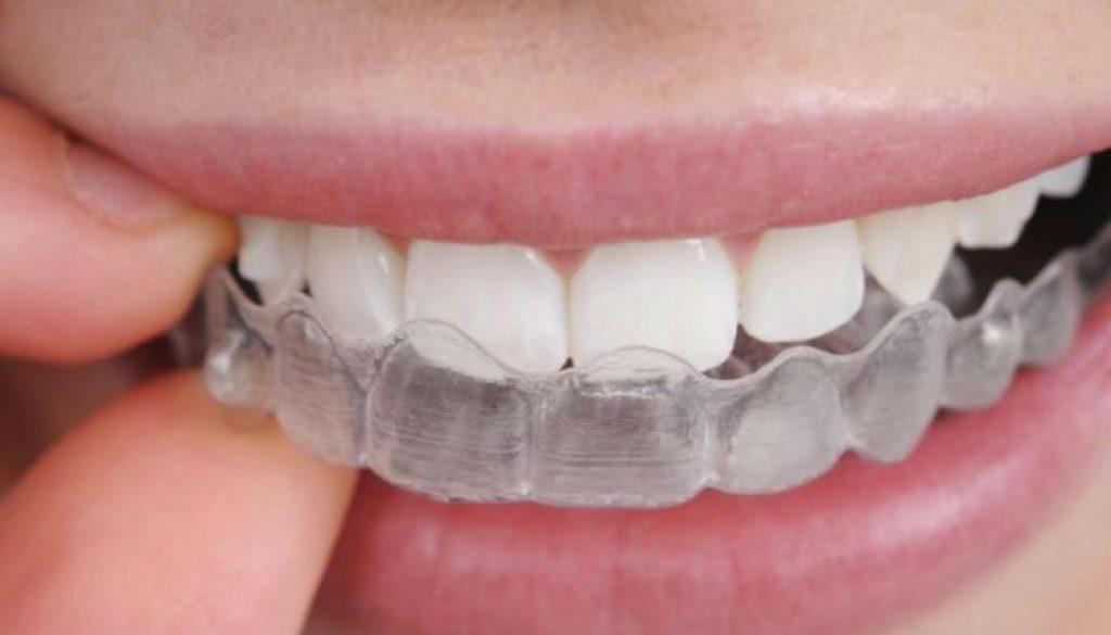 Tips contra el rechinado de dientes