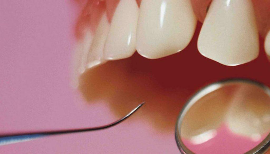 ventajas-de-las-resinas-dentales
