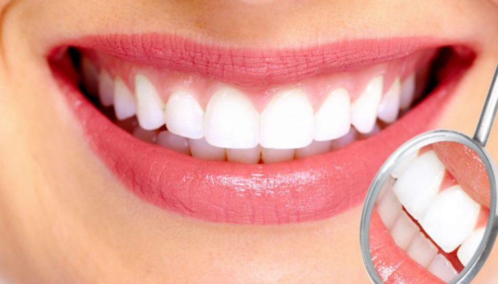 La importancia de la limpieza dental