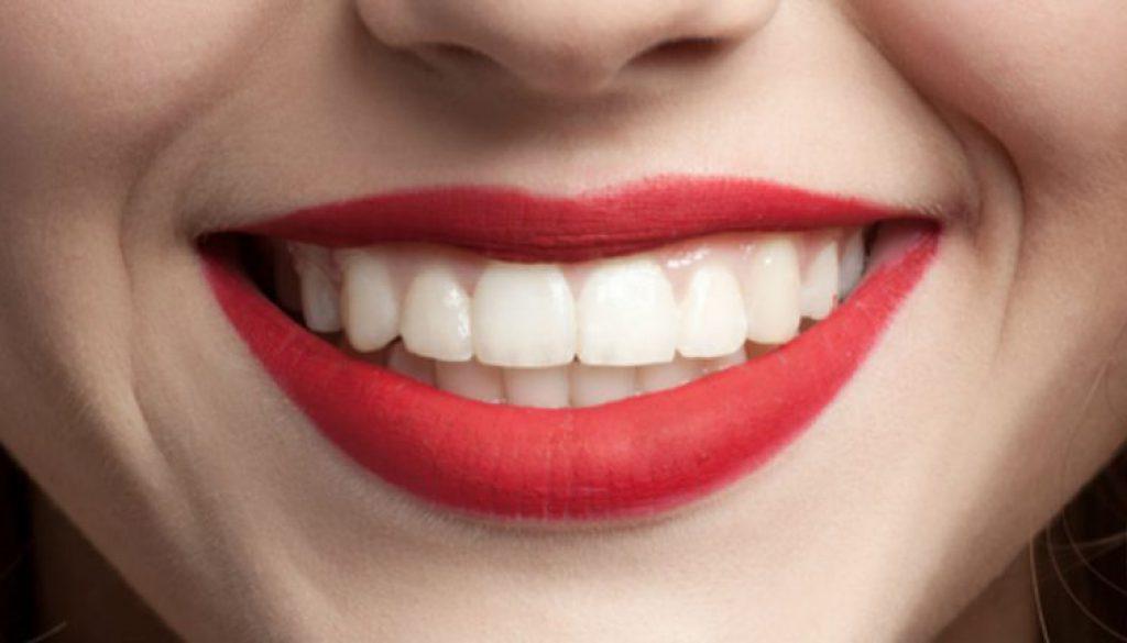 Blanqueamiento dental a mitad de precio