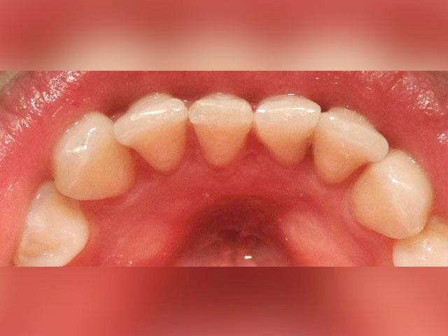 Correccion-de-posicion-dentaria-despues-1