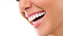 blanqueamiento-dental-palma-de-mallorca-1024x688