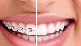 ortodoncia jpg