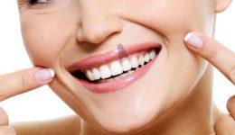 cuidados-implantes-dentales-valencia