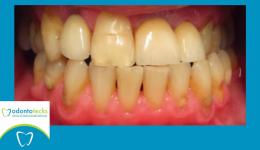 dientes amarillos jpg