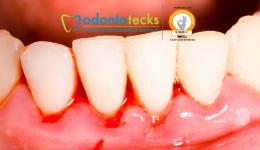 Gingivitis odontotecks jpg