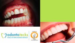 Dientes flojos periodontitis jpg