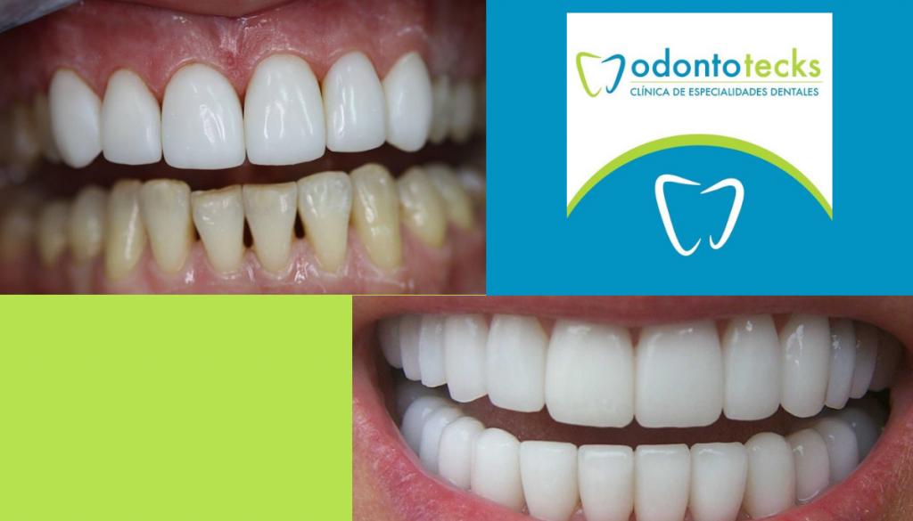 restauración dental jpg