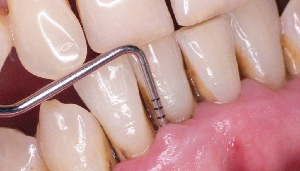 imagen_periodoncia