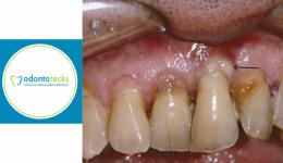 Periodontitis odontotecks
