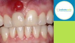 Absceso dental jpg