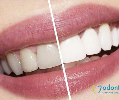 dientes manchados