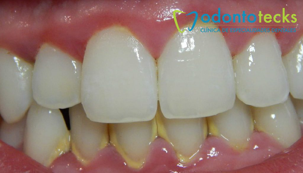 placa-dental