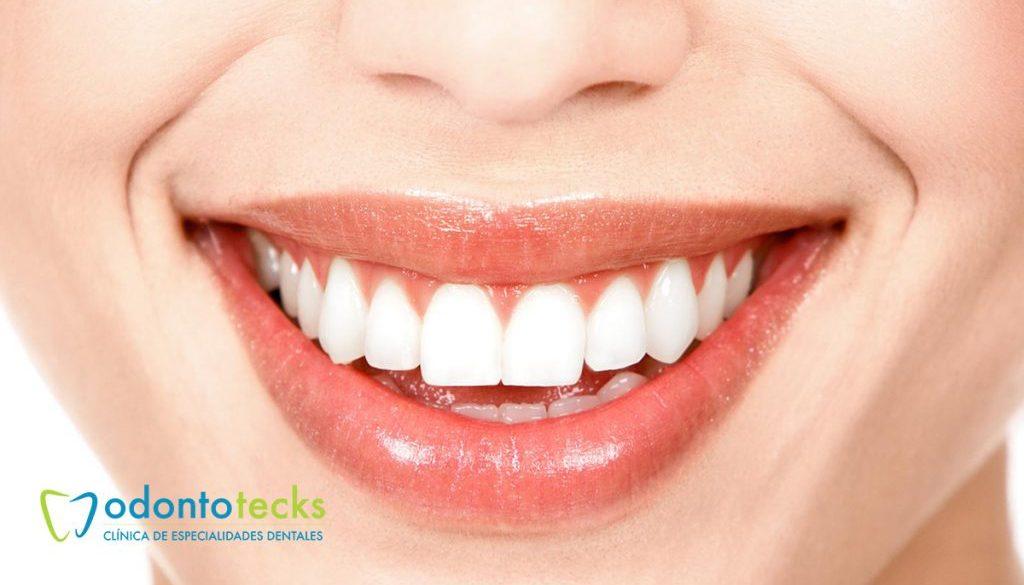 esmalte-dental