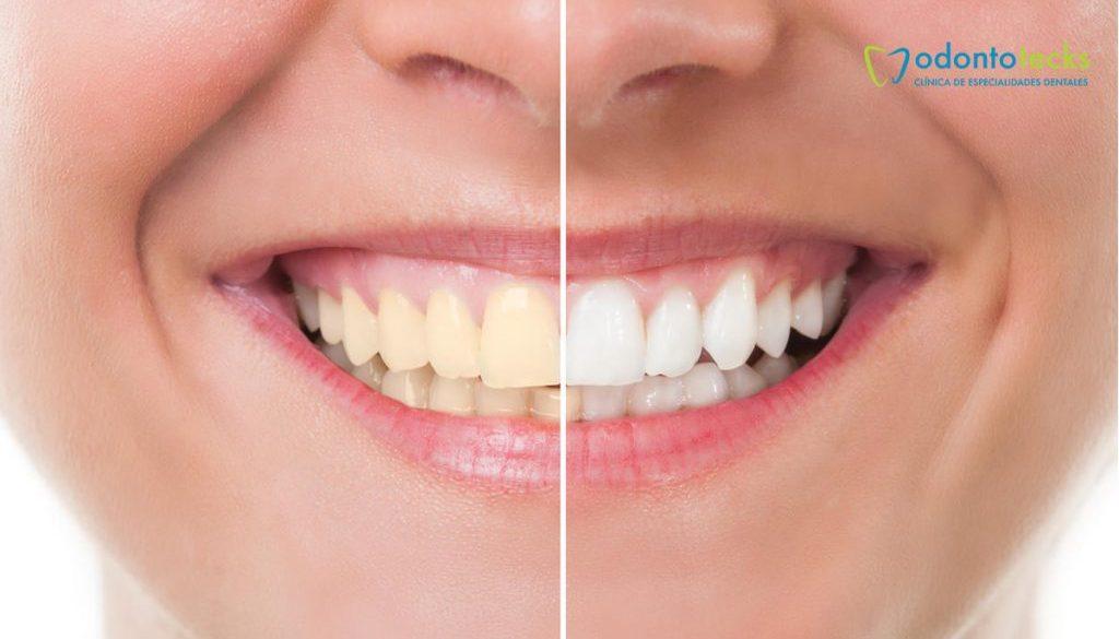 dientes.manchados
