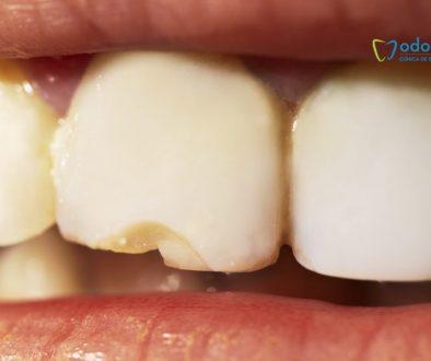 diente.fisurado